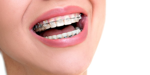 How to Find the #1 Orthodontist in Woodbury NY and Why it Matters